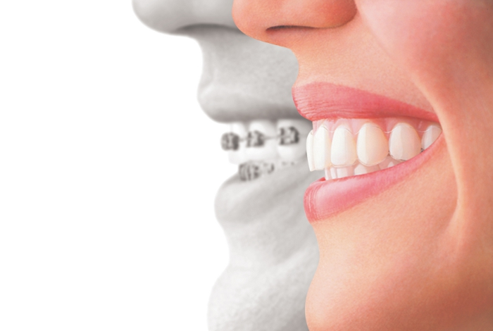 Invisalign compared to braces
